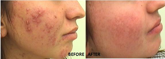 acne-ba