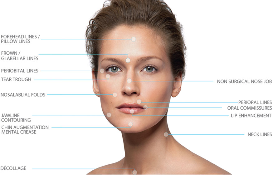 dermal-fillers-indications-for-volume-loss
