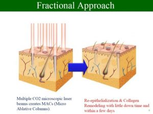 original_fractional_approach