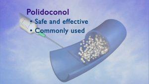 original_polidocanol_sclerotherapy