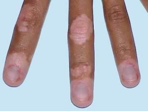 original_vitiligo-fingers