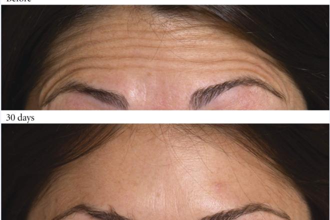 Ρυτίδες έκφρασης στην περιοχή του μετώπου, πρίν και μετά τη θεραπεία με Botox.