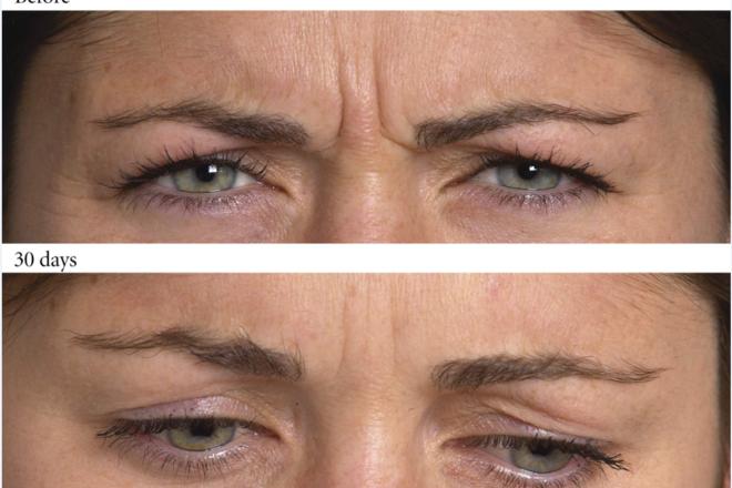 Ρυτίδες έκφρασης στην περιοχή του μεσοφρύου, πρίν και μετά τη θεραπεία με ΒΟΤΟΧ.
