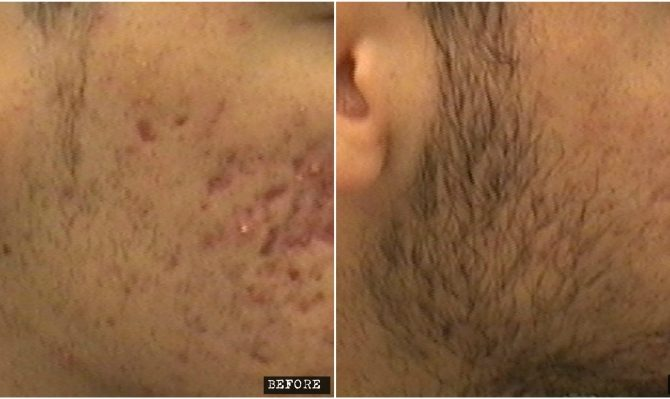 Fractional Co2 Laser for acne scars