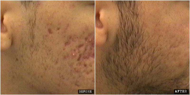 Fractional Co2 Laser for acne scars