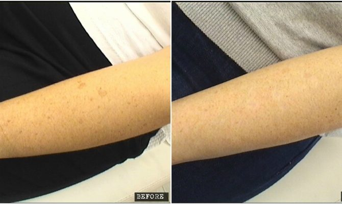 Age spots laser treatment