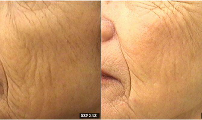 Fractional CO2 Laser for facial rejuvenation