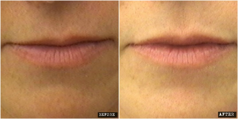 Lip contour with Volbella