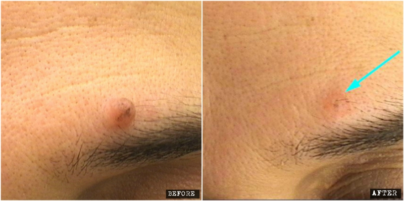 Mole shave excision