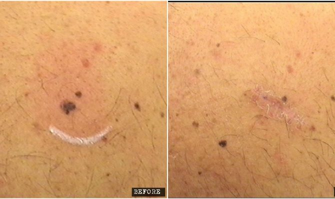 Dysplastic mole surgical removal