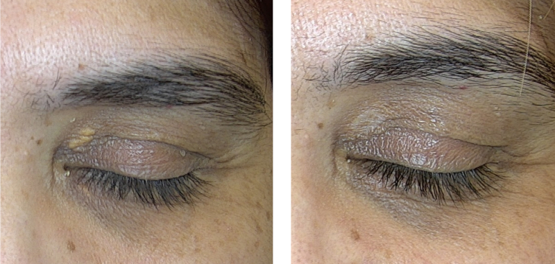 xanthelasma before and after